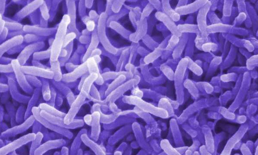 Bacteria del cólera. //sanar.org