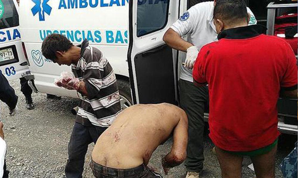 México: Cortan las manos a siete presuntos ladrones