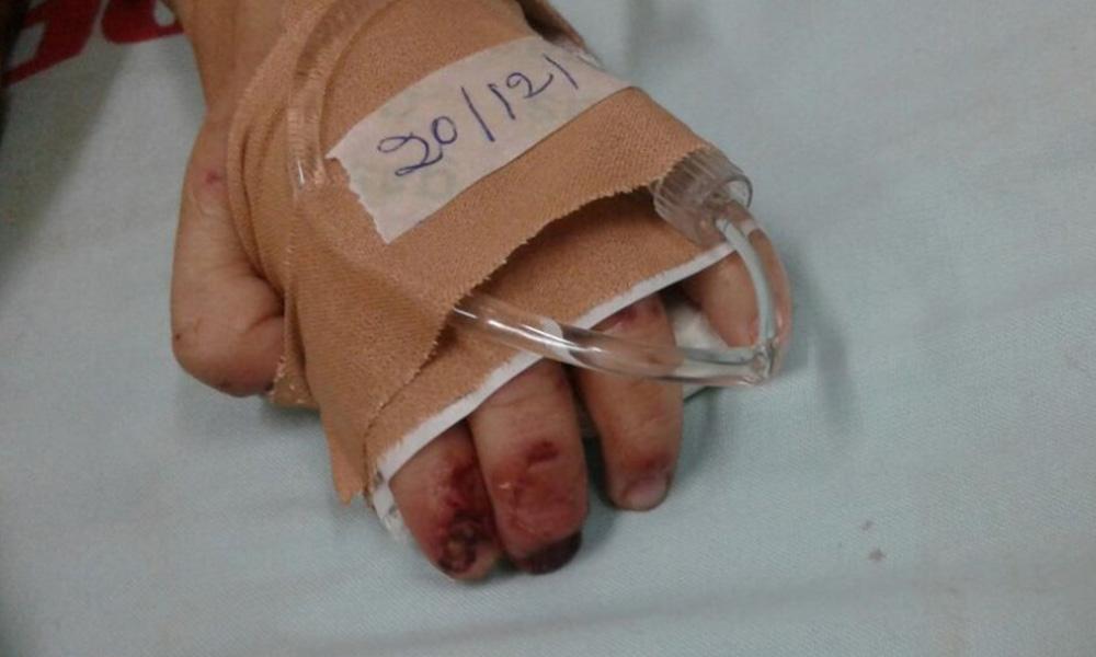 Así quedaron las manos del bebé. Foto://Abc.com.py