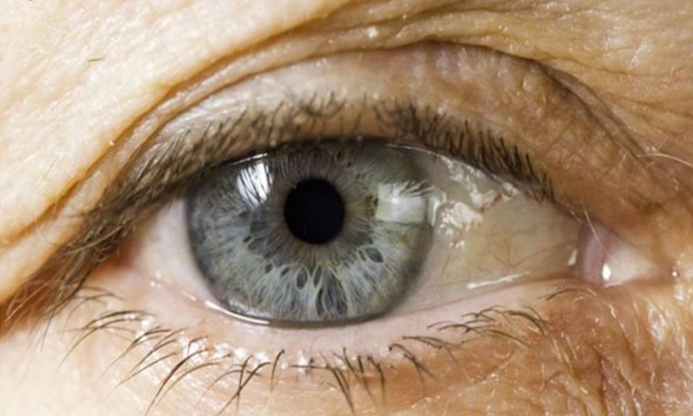 Se insta a la población a consultar periódicamente al oftalmólogo. Foto://www.cmi.com.co.