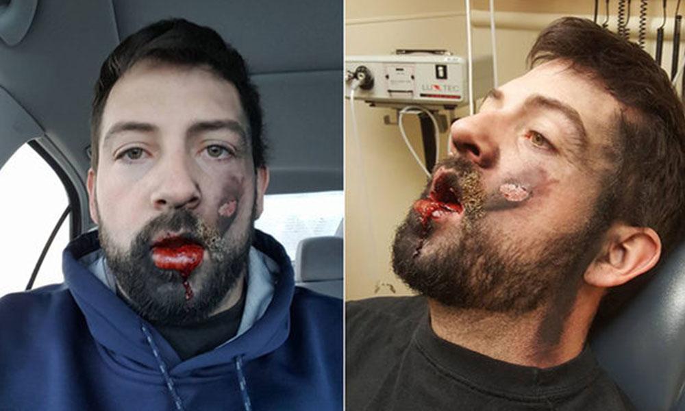 Andrew Hall, un estadounidense de 30 años al que se le ha estallado en la cara un cigarrillo electrónico. Foto://telecinco.es