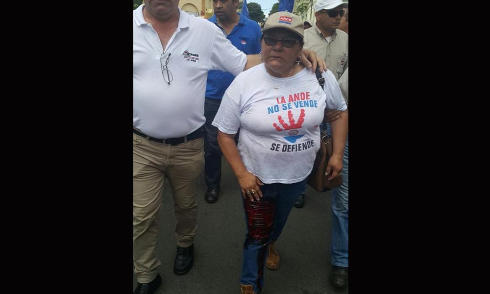 Mirian Rojas, unas de las alcanzadas por los balines de goma frente al Ministerio de Hacienda // Gentileza